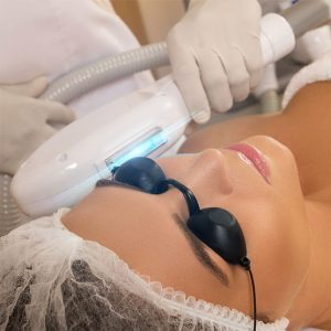 IPL Sublative Skin Rejuvenation