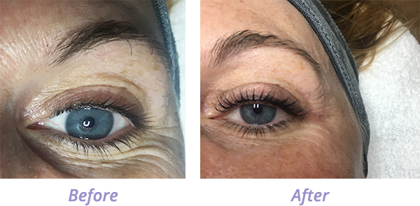 Lash Lift Photos Before and After